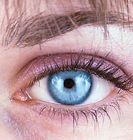 HUMAN EYE<br /> Constricted pupil<br /> (2 of 2)<br /> In bright light the pupil constricts,
