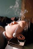 Burning herb balls enhance acupuncture. ..Photo taken March 2000