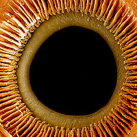 A view of the inner surface of the iris, pupil, and ciliary processes of the eye.  **On Page Credit Required**