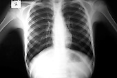 Chest x-ray. Royalty Free