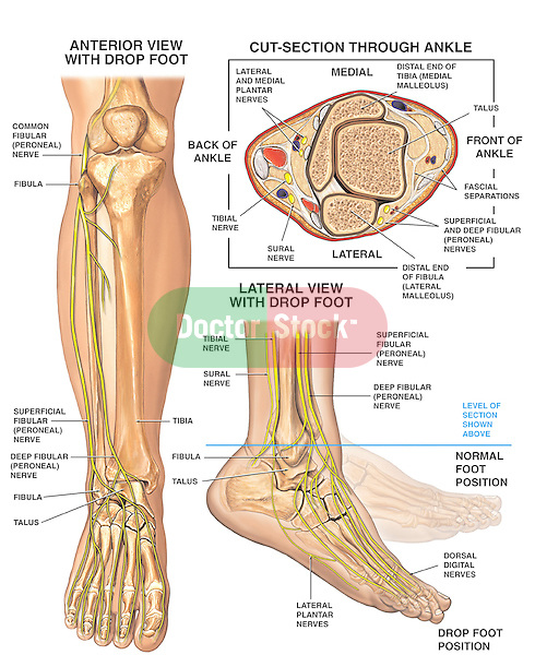 Anatomy of the Foot and Ankle with Foot Drop Deformity ...