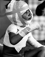 Two battalions of Viet Cong systematically killed 252 civilians in a &quot;vengeance&quot; attack on the small hemlet of Dak Son.  Tears are streaming down the face of little three-year-old Dieu Do, now homeless, and fatherless.  December 6, 1967.  (USIA)<br /> NARA FILE #:  3306-MVP-4-11<br /> WAR &amp; CONFLICT BOOK #:  425