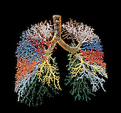 Resin cast of human lungs and the bronchial tree.