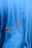 X-ray of the ankle of a 58 year old woman in a fiberglass splint who fell and sustained a bimalleolar fracture, in which the lateral and medial malleoli were fractured and the ankle was dislocated.