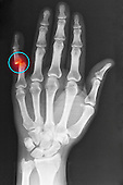 Hand x-ray of an adult man showing a dislocation of the fifth finger at the  proximal interphalangeal joint.