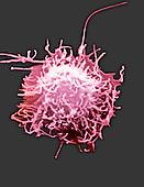 Hela Cancer Cell. SEM