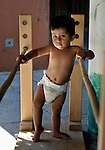 One-year old Vander Yarel Catmona walks between parallel bars during a session of the early intervention program of Piña Palmera, a center for community based rehabilitation for people living with disabilities in Zipolite, a town in Oaxaca, Mexico. The boy lives with some physical disability.