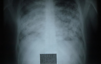 INDIA (West Bengal - Calcutta) 2007, Xray plate showing the condition of the lungs of  Riaz Ahmet who is admitted at Thakurpukur Cancer Hospital. He is dying of Lung cancer. Doctor said the reason for such diseas are excessive smoking and inhailing of polluting gases. A recent report by CNIC (CHITTARANJAN NATIONALCANCER INSTITUTE)  one of the most prominent cancer Institue of the country declairs Calcutta has the most air pollution in the country and 70% of its population suffers from respiratory and lung diseases. - Arindam Mukherjee
