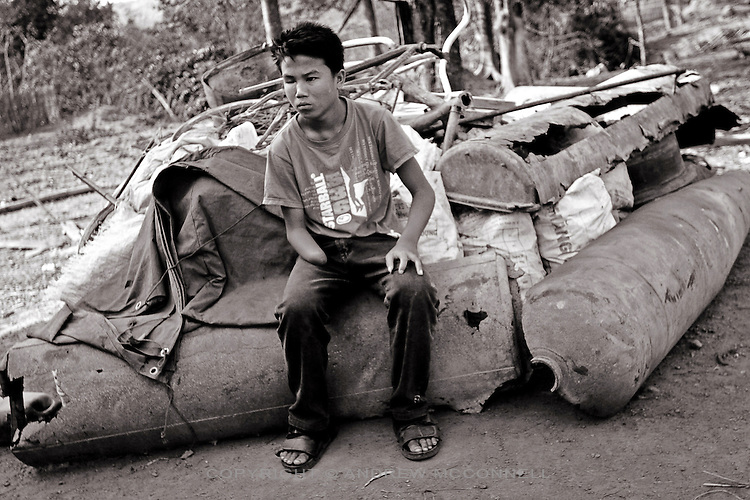 14 year-old Latsasamy who lost sight in one eye, his right hand and 2 fingers from his left hand after a small bomb exploded in the ground underneath a fire on which he was cooking food. Xepon on the Ho Chi Minh trail, southern Laos.