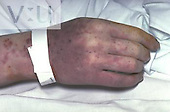 Meningococcal Septicaemia
