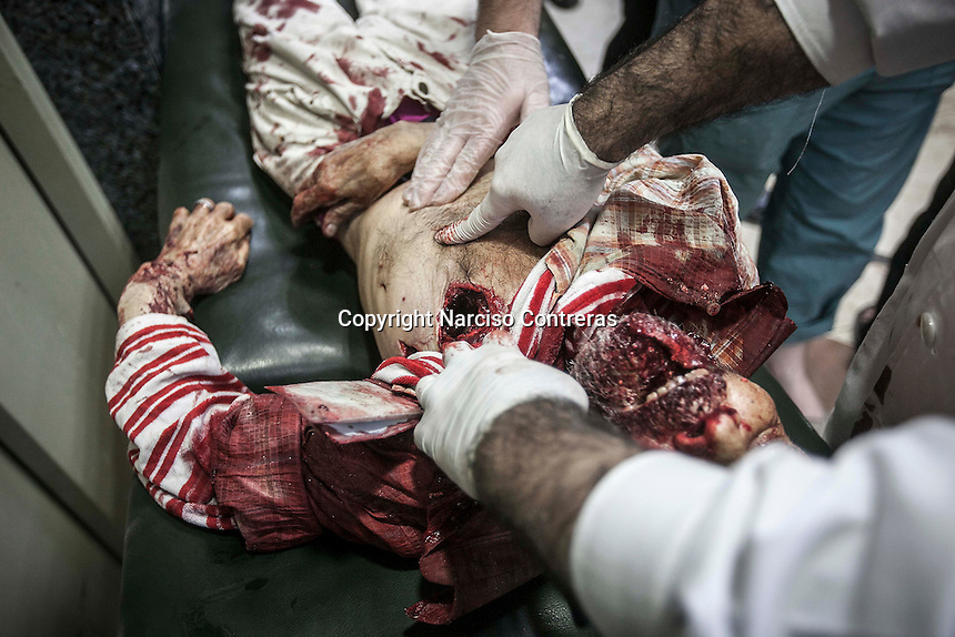 A body of an elder Syrian civilian lies down on a trolley after has arrived dead with a hole in his chest made by one ammunition shot from a helicopter when it was shelling and shooting over the Hananu district at the northeast of Aleppo City.
