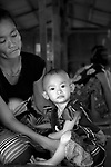 Mu Htoo Paung, a 2 year old with congenital heart disease. Her mother took her to a clinic in Burma many times. In May 2009, doctors at the clinic failed to diagnose Mu Htoo Paung's heart condition. Someone in the village they lived in told the family about the Mae Tao Clinic in Mae Sot. They had to borrrow money from members of their village to make the trip..The Mae Tao Clinic (MTC), founded and directed by Dr. Cynthia Maung, provides free health care for refugees, migrant workers, and other individuals who cross the border from Burma to Thailand in search of of medical treatment.