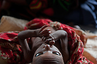 Daud Ali, a severely malnourished  child at a Doctors Without Borders' therapeautic feeding center in Dagahaley camp in Kenya.