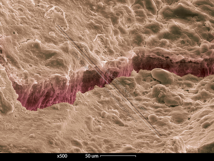Crack in human tooth enamel. Colored scanning electron micrograph (SEM).   The enamel is the outer covering of the crown (visible part) of the tooth. It is the hardest substance in the human body.
