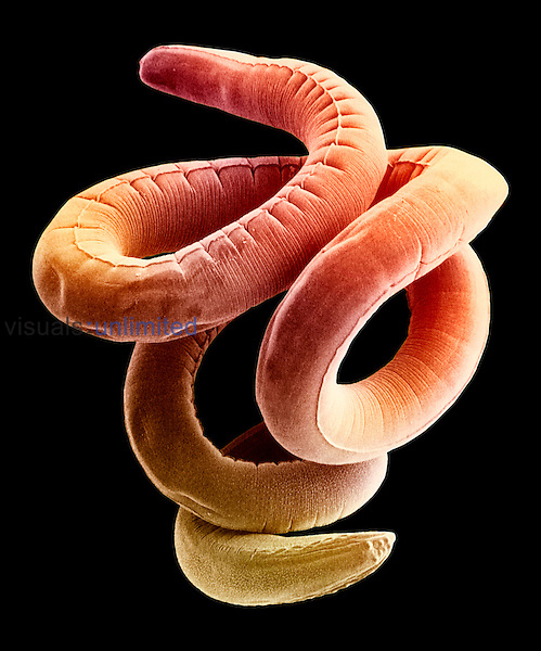 This Nematode roundworm (Foleyella) commonly lives as a parasite in frogs.  SEM X130  **On Page Credit Required**