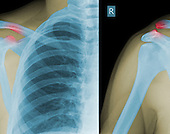 X-rays showing type III AC separation. Both acromioclavicular (right) and coracoclavicular (left) ligaments are torn.