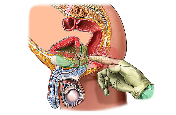 This full color medical illustration pictures the digital rectal examination from a lateral (side) cut-away view.