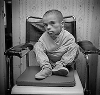 Gomel, Belarus, Ocober 1995..The explosion at the Chernobyl Nuclear Power Plant on April 26 1986 was the worst nuclear accident in history..Children abandoned to an orphanage because of suspected radiation sickness: some are kept tied in crude strait-jackets..