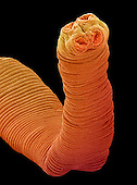 The head of the Tapeworm is called a scolex, and is equipped with hooks and suckers which are used for attaching to the intestinal wall of the host.  SEM X90  **On Page Credit Required**
