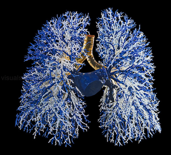 Resin cast of pulmonary viens and bronchial tree, anterior view, human lungs.