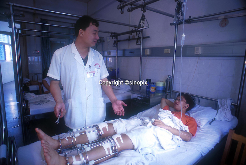 Dr Zhang  of a Guangzhou hospital shows a patient called Zhu (19) how he has to adjust the cage on a daily basis to achieve the 0.5 - 1mm daily increase in height. The operation it is claimed can increase height by upto 20 cm...PHOTO BY SINOPIX