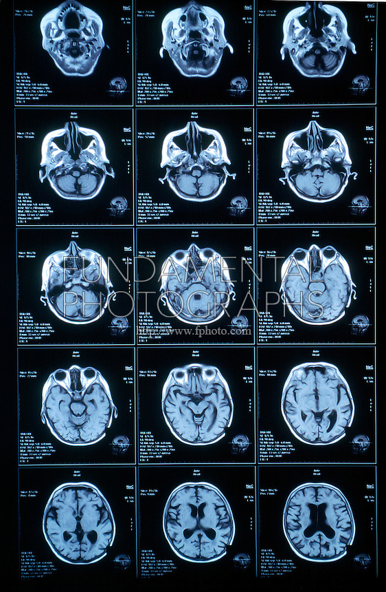 MAGNETIC RESONANCE IMAGING<br /> MRI Film (Brain Axials)<br /> MRI uses magnetic signals to create image &quot;slices&quot; of the human body.  The images are based on differences between types of tissues