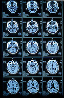 MAGNETIC RESONANCE IMAGING<br />