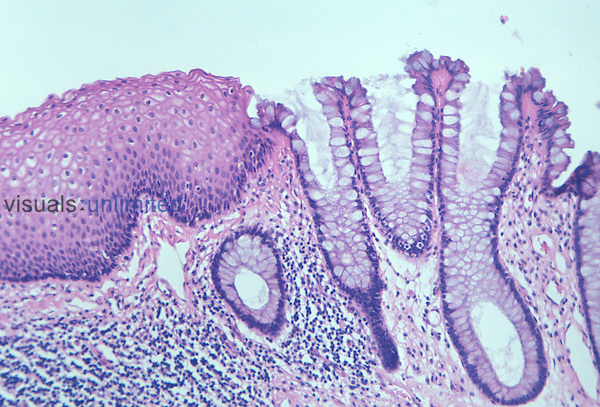 Mammal rectum and anus junction section. LM X36