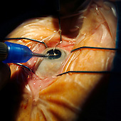 eye cataract , destruction of the with an ultrasonic  sucker *** Local Caption ***