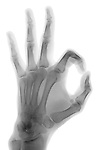 X-ray image of OK hand gesture (black on white) by Jim Wehtje, specialist in x-ray art and design images.