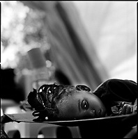 Luanda, Angola, May 26, 2006.Susa, 2, is a patient at the Cacuaco MSF Belgium operated cholera field clinic. Between February and June 2006, more than 30000 people were infected with cholera in Angola's worse outbreak ever; more than 1300 died.