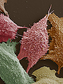 Lung cancer cells. SEM