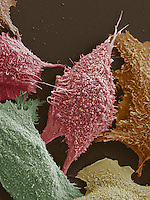 Lung cancer cells. SEM
