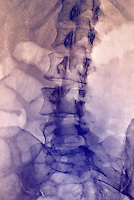 abdominal x-ray of a 38 year old woman showing the lumbar spine, a portion of the pelvis and ribs
