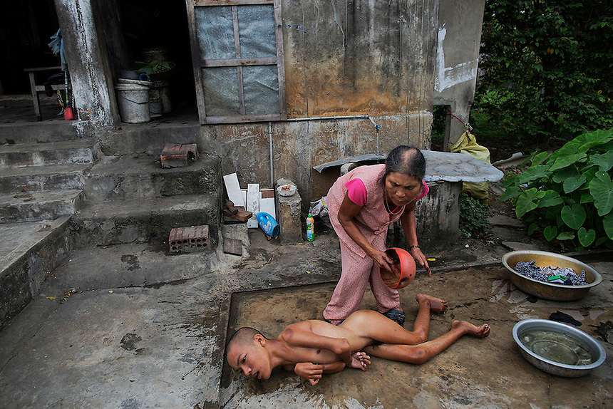 Tang Thi Thang baths her handicapped son Doan Van Quy outside their family house in Truc Ly, in Vietnam's Quang Binh Province April 11, 2015. Doan Van Quy's father, a former soldier serving on 12.7 mm anti-aircraft guns during the Vietnam War, said he lived in several areas contamination by the defoliant Agent Orange. Two of his sons were born with serious health problems parents and local health officials link to father's exposure to the Agent Orange. The older son died two years ago.  REUTERS/Damir Sagolj