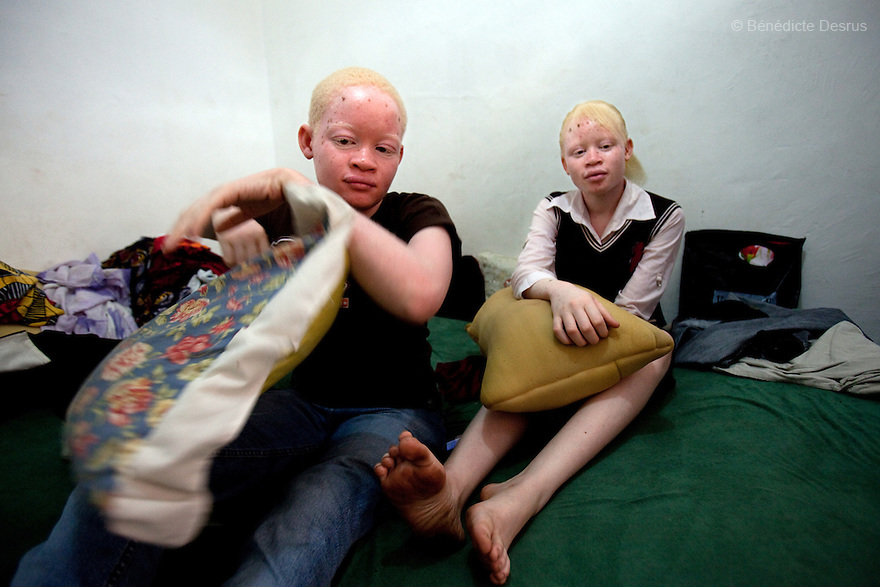 10 june 2010 - Dar Es Salaam, Tanzania - Samuel Mluges twin daughters: Prisca and Priscila (17 yrs) on her bedroom. Samuel Herman Mluge (51yrs) an albino rights activist in Dar Es Salaam, Tanzania and his wife Teresa January (46 yrs) have five children, all with albinism. Albinism is a recessive gene but when two carriers of the gene have a child it has a one in four chance of getting albinism. Tanzania is believed to have Africa' s largest population of albinos, a genetic condition caused by a lack of melanin in the skin, eyes and hair and has an incidence seven times higher than elsewhere in the world. Over the last three years people with albinism have been threatened by an alarming increase in the criminal trade of Albino body parts.At least 53 albinos have been killed since 2007, some as young as six months old.Many more have been attacked with machetes and their limbs stolen while they are still alive. Witch doctors tell their clients that the body parts will bring them luck in love, life and business. The belief that albino body parts have magical powers has driven thousands of Africa's albinos into hiding, fearful of losing their lives and limbs to unscrupulous dealers who can make up to US$75,000 selling a complete dismembered set. The killings have now spread to neighbouring countries, like Kenya, Uganda and Burundi and an international market for albino body parts has been rumoured to reach as far as West Africa. Photo credit: Benedicte Desrus