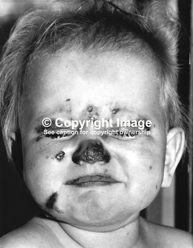 Seriously injured 10 months old Stephen Harrison who was rescued by RUC Constable Tom Coulter following a Provisional IRA bombing in Rosemary Cafe, Rosemary Street, Belfast, N Ireland, 4th April 1977. His mother, Jacqueline Harrison was discharged from hospital after treatment.  See also picture of a two year old Stephen with his rescuer, Constable Coulter, who was awarded the Queen's Award for Bravery. In the incident he entered the bombed premises despite the ever-present possibility of a second explosive device. As the baby's face had turned blue and he gave it vital heart massage. Constable Tom Coulter then rescued another young boy from the rubble.  For pictures of Stephen with his rescuer Constable Coulter search using the following keywords as printed: Coulter &amp; Tom &amp; Constable. The injuries picture of Stephen was issued by the hospital authority. Ref: 19770406wireprint  <br /> <br /> <br /> Copyright Image from Victor Patterson, 54 Dorchester Park, Belfast, UK, BT9 6RJ<br /> <br /> Tel: +44 28 9066 1296<br /> Mob: +44 7802 353836<br /> Voicemail +44 20 8816 7153<br /> Email: victorpatterson@me.com<br /> Email: victorpatterson@gmail.com<br /> <br /> IMPORTANT: My Terms and Conditions of Business are at www.victorpatterson.com