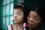 Le Thi Thu, 42, and her daughter, Nguyen Thi Ly, 11 sit outside their home in a village south of Da Nang, Vietnam. They are second and third generation victims of dioxin exposure, the result of the U.S. military's use of Agent Orange and other herbicides during the Vietnam War more than 40 years ago. Despite their facial deformities and other health problems, Thu says she never feels anger at what has happened to herself and her daughter. &quot;I'm not angry with anybody just because Vietnam had a war,&quot; she says. &quot;A lot of people suffered. Sometimes I feel sad, but I'm not angry with anybody.&quot; The Vietnam Red Cross estimates that 3 million Vietnamese suffer from illnesses related to dioxin exposure, including at least 150,000 people born with severe birth defects since the end of the war. The U.S. government is paying to clean up dioxin-contaminated soil at the Da Nang airport, which served as a major U.S. base during the conflict. But the U.S. government still denies that dioxin is to blame for widespread health problems in Vietnam and has never provided any money specifically to help the country's Agent Orange victims. May 28, 2012.
