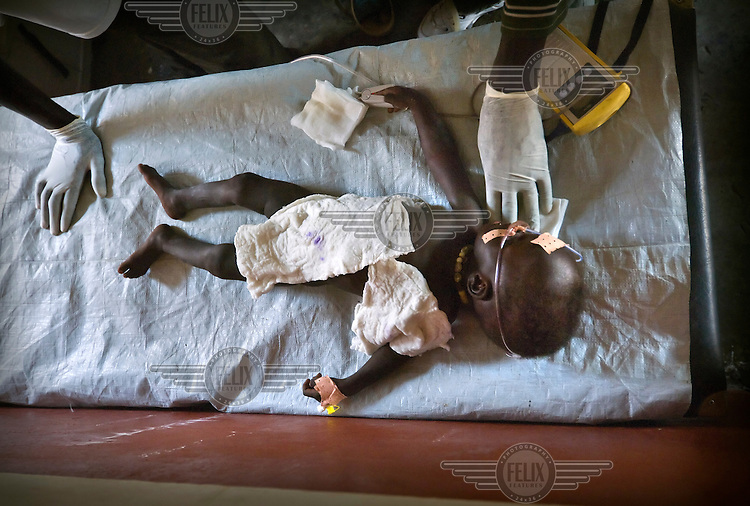 A baby with severe dehydration is treated on the intensive care table of a hospital managed by MSF (Medecins Sans Frontieres). .