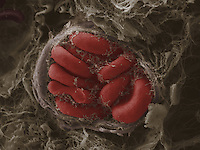 Red blood cells in a blood vessel in mammary tumor. SEM