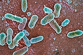 Species of Salmonella Bacteria are pathogens of various diseases such as typhoid fever and gastroenteritis. SEM