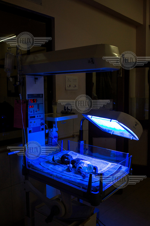 A premature baby sleeps beneath a phototherapy light in the postnatal intensive care unit at Duncan Hospital.