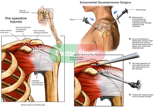 Left Shoulder Impingement Syndrome Wih Arthroscopic
