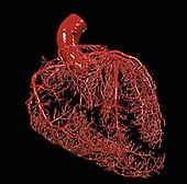 Resin cast of heart.
