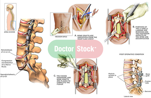 listhesis of l5 s1 The frequently affected l5 and s1 nerve roots produce symptoms radiating into   patients with spondylolisthesis often complain of chronic, axial low back pain,.