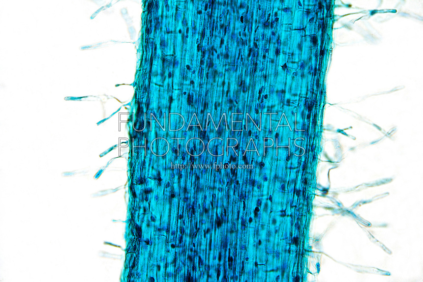 PLANT CELLS<br /> Root Hairs, (LM) 100x mag<br /> Unsectioned whole mount root segment showing cellular composition and lateral root hairs.