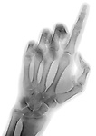 X-ray image of a reaching finger (black on white) by Jim Wehtje, specialist in x-ray art and design images.