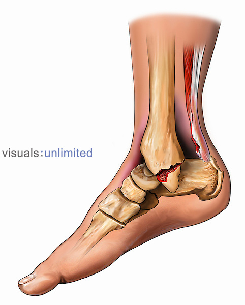 Biomedical illustration showing a tear of the Achilles tendon and a medial malleolar fracture in a right leg.