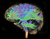 Diffusion MRI or diffusion tensor imaging (DTI) of the human brain. In neuroscience, tractography is a 3D modeling technique used to visually represent neural tracts.