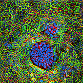 Confocal image of two groups of dedifferentiated human cancer cells surrounded by normal cells
